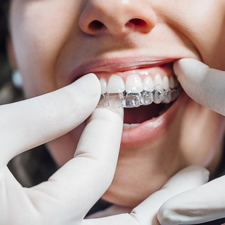 Closeup of dentist putting Invisalign tray in patient's mouth