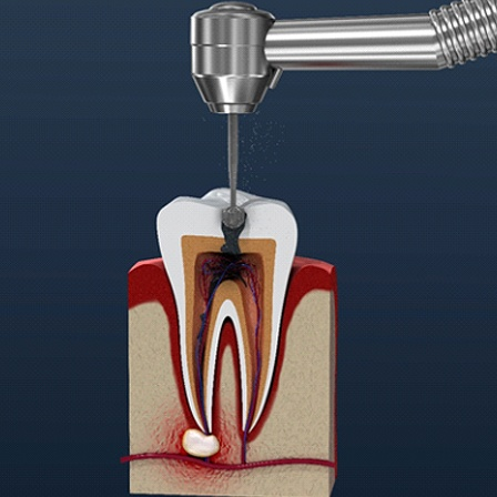 An image of a root canal procedure