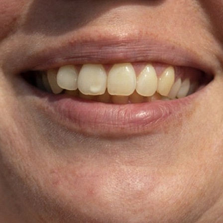 smile with white stain on tooth